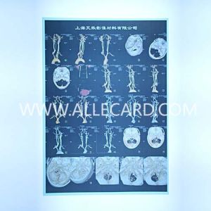 X Ray Pet Printing Film Blue CT Film pictures & photos