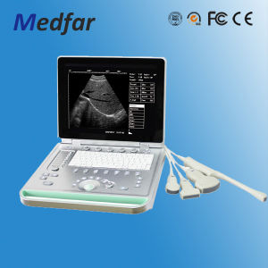 Laptop Ultrasound Scanner MFC-Ss7