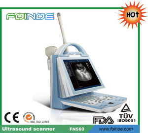 Fn560 Full Digital B Model Portable Ultrasound Machine pictures & photos