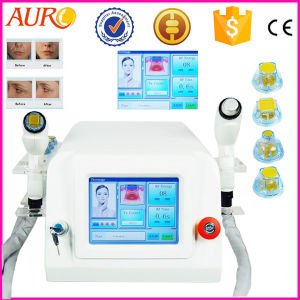 Wrinkle Removal Skin Rejuvenation Thermagee RF Machine pictures & photos