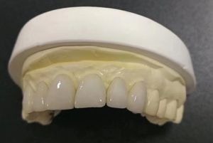 Dental Non Prep Veneer From China Dental Lab pictures & photos