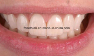 Dental Non-Prep Ultra Thin Veneers From China Dental Lab pictures & photos