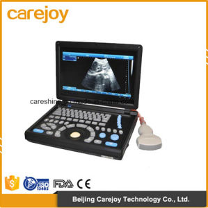 Factory Price 10.4 Inch Full Digital Laptop Ultrasound Scanner with Convex Probe (RUS-9000E2) -Fanny pictures & photos