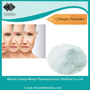Protein Whey Improve Product Protein and Nutrient Collagen Peptides pictures & photos