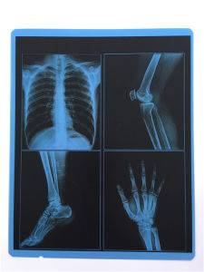 Free Sample! ! Medical Blue X-ray Film pictures & photos
