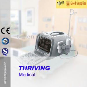 Hospital Medical Portable Ultrasound Scanner (THR-US6602) pictures & photos