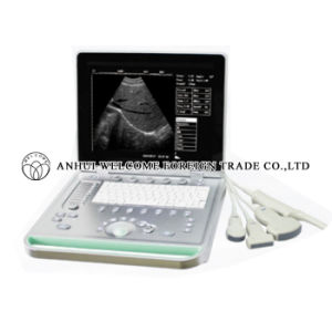 Laptop Digital Ultrasound Scanner pictures & photos