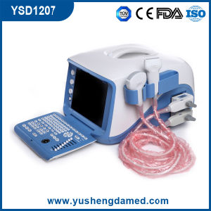 Digital Portable Ultrasound CE ISO FDA Approved Ysd1207 pictures & photos