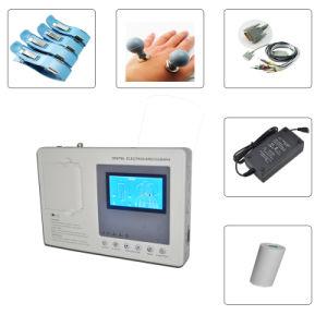 Digital 1-Channel Handheld ECG (EKG-901-2) -Fanny pictures & photos