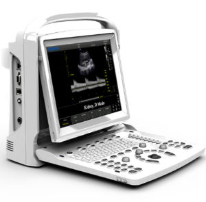 Full Digital Portable B/W Ultrasound Scanner with Pw Chison Eco3 Expert pictures & photos