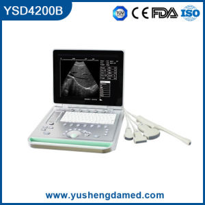 Laptop Digital 15 Inch High Qualified Medical Instrument Ultrasound Scanner pictures & photos