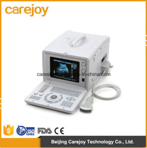 Factory Price 10-Inch Portable Ultrasound Scanner with Linear Probe (RUS-6000D) -Fanny pictures & photos
