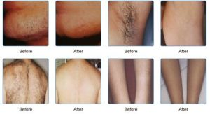 Beijing Sincoheren 808nm Diode Laser Alexandrite Hair Removal Laser Machine pictures & photos