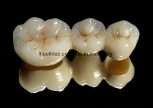 Pfm Crowns and Bridge for Dental Treatment Restorations pictures & photos