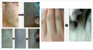 Portable 808nm Diode Laser Hair Removal Machine with Sapphire Handle pictures & photos
