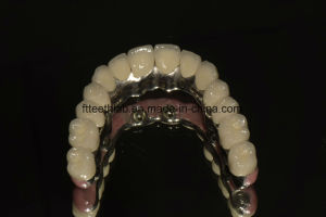 Full Bridge Dental Implants From China Dental Lab pictures & photos