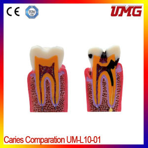 Dental Professional Teeth Model and Dental Models pictures & photos
