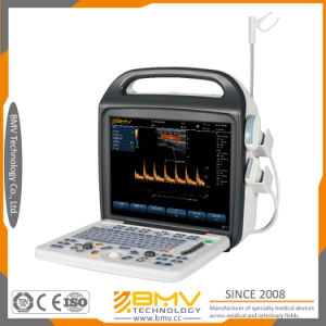 Bcu30 2D Color Doppler Handheld Doppler Ultrasound Scanner Device pictures & photos