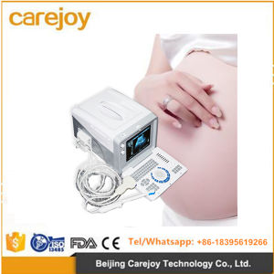 Ultrasound Scanner Diagnostic System with Convex Probe pictures & photos