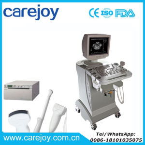 Carejoy Ce Approved Trolley Ultrasound Machine/Scanner with Convex Probe -Candice pictures & photos