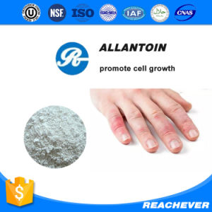 (Allantoin) --Promote Cell Growth Allantoin pictures & photos
