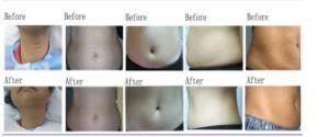 Kuma Shape Body Shaping Machine (RF+Vacuum+infrared+massage roller) Ce Approved pictures & photos