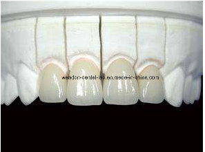 Emax Crown for Chinese Dental pictures & photos