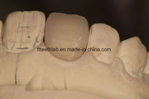 Cosmetic Dental Porcelain Veneers Made in China Dental Lab pictures & photos