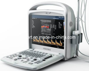 Protable Color Doppler Ultrasound with CE (CX9300) pictures & photos