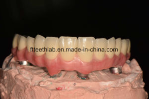Full Arch Dental Screwed Implant Bridge From China Dental Lab pictures & photos