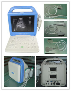 Satisfying Digital Laptop-Type Ultrasound Scanner (XK/21355LCD)
