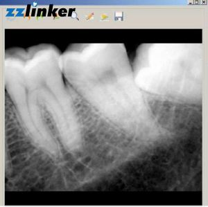 Lk-C64 South Korea Yesbiotech Dental Rvg X Ray Yes Sensor pictures & photos