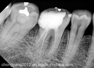 New Model Hot Sale Dental Rsv4 Visiodent X-ray Sensor pictures & photos