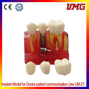 Removable Frasaco Teaching Teeth Model/Dental Teeth Model/Typodont Model pictures & photos