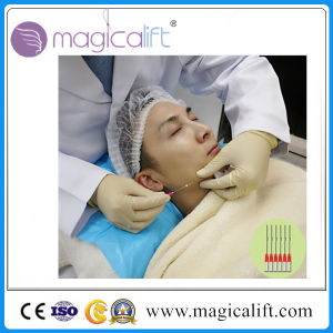 Pdo Thread Lifting 3D- Lift Thread Pdo for Face and Body pictures & photos
