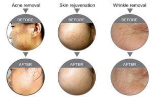 Multifunctional CO2 Laser for Pigmentation Treatment pictures & photos