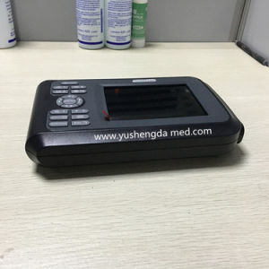 High Quality Clear Image Palmtop Hospital Equipment Ultrasound Scanner pictures & photos