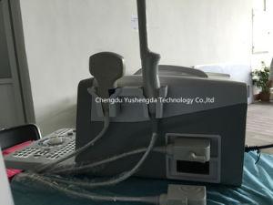 FDA SGS Ce Ultrasonic Medical Equipment Digital Portbale Ultrasound Machine pictures & photos