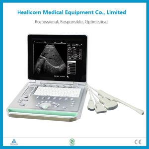 Hhbw-7 Laptop B/W Ultrasound Scanner Portable Ultrasound Diagnostic System pictures & photos