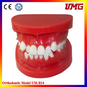 Dental Orthodontic Teaching Teeth Model for Treament Model pictures & photos