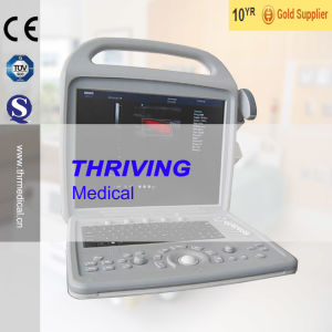 3D Color Doppler Portable Ultrasound Scanner (THR-CD580) pictures & photos