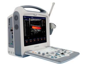 Sh2000 Color Doppler Ultrasound Scanner 3D Dopler Ultrasound