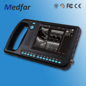 Palmsize Black&White Ultrasound MFC3000 pictures & photos