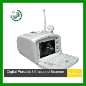Ultrasound Portable Scanner