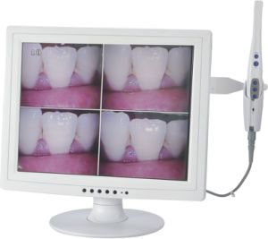 Mlg Best Quality Wilress Dental Intraoral Camera with Ce, FDA pictures & photos