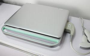 3D Laptop Color Doppler Portable Ultrasound System pictures & photos