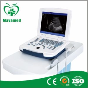 My-A007b Portable Full-Digital Light Laptop Ultrasound Scanner pictures & photos