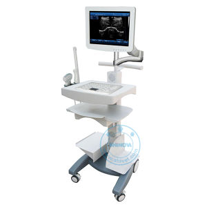 Touch Screen Trolley Ultrasound Diagnosis Scanner (Win 100V) pictures & photos