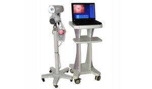 Beijing China Best Selling Model Colposcope Digital Imaging System pictures & photos