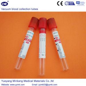 Vacuum Blood Collection Tubes Plain Tube (ENK-CXG-014) pictures & photos